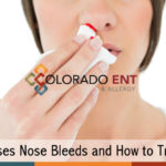 What Causes Nose Bleeds and How to Treat Them
