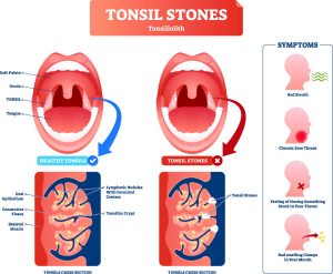 what are tonsil stones