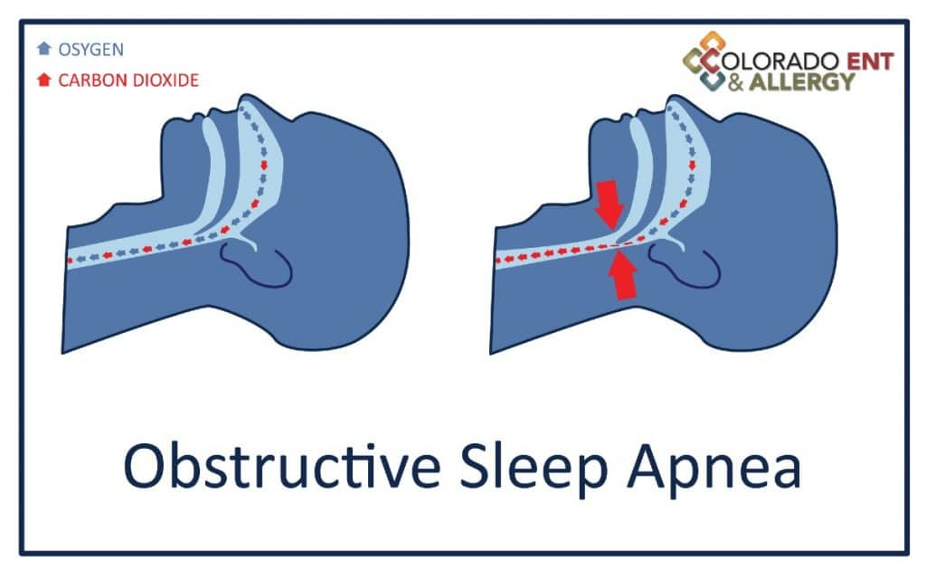 Inspire® Upper Airway Stimulation Therapy for obstructive sleep apnea