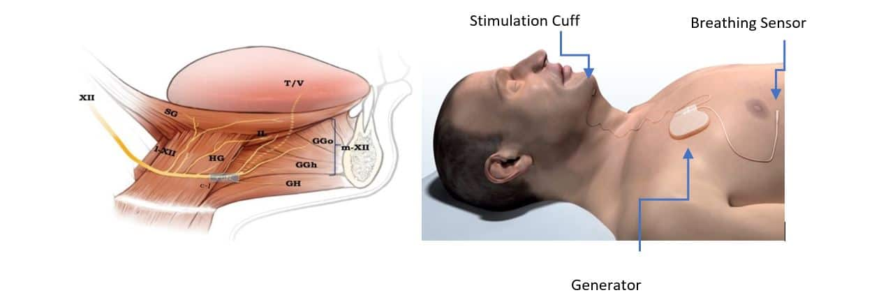 Inspire Upper Airway Stimulation Therapy