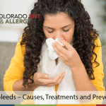 Nosebleeds – Causes, Treatments and Prevention