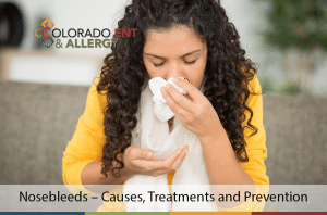 nosebleeds causes treatments and prevention